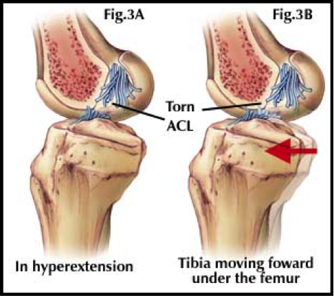 a look at the anterior cruciate ligament injuries in sports