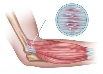 tennis elbow image
